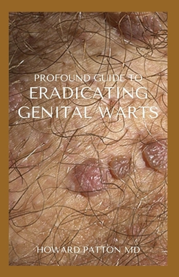 Profound Guide to Eradicating Genital Warts: The Effective Guide To Help You Destroy Your Existing W... Paperback, Independently Published