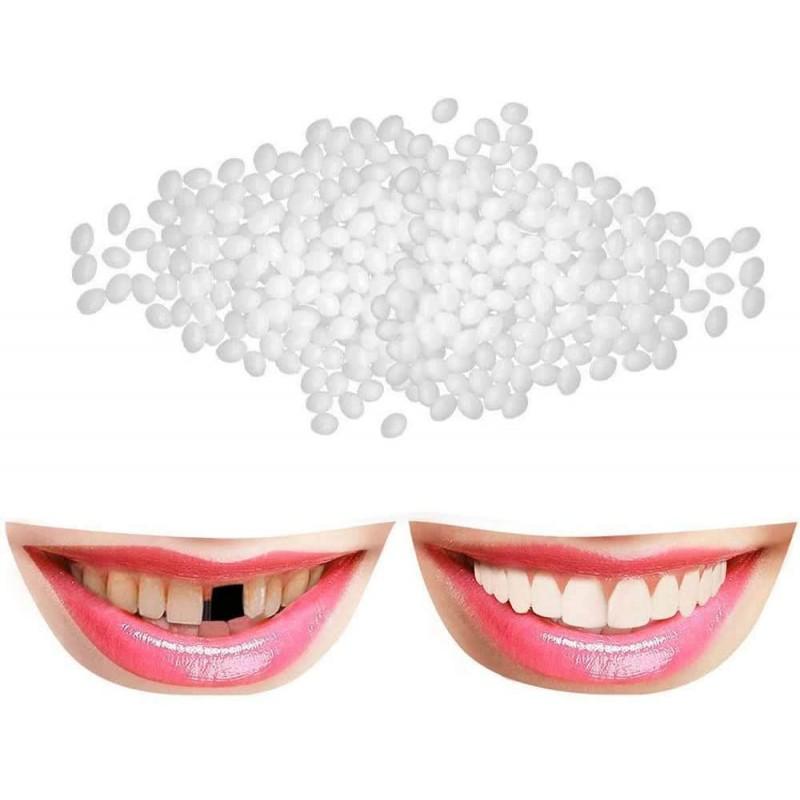 MeiKai 임시 치아 임시 치아 수리 키트 수정 치아 임시 치아 베니어 치아 충전 키트 틀니 접착제 가짜 치, 1