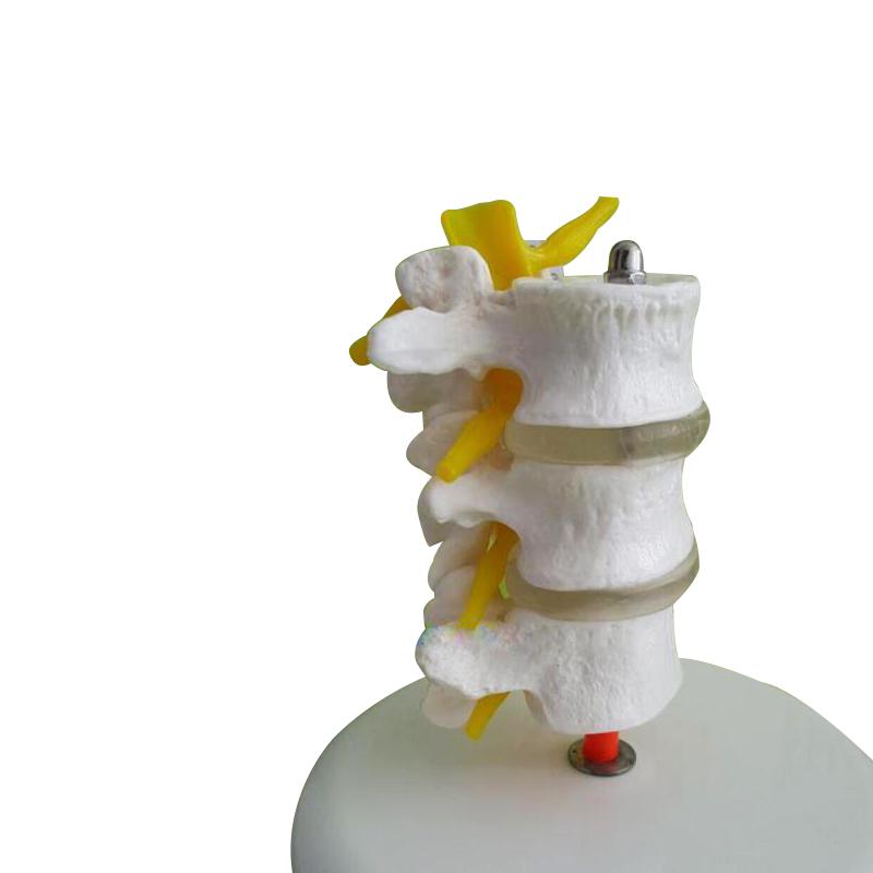 실험 교육용 실습 보건교육 인체 디스크 요추 관절 척추 모형 수술 해부학, 요추모형개 (POP 4595341738)