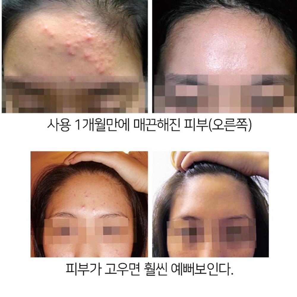 나만의 화농성 여드름 연고 흉터 깨끗한 내얼굴 퍼스트온, 아크나 토너