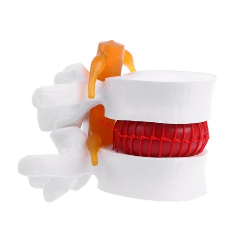 1pc 척추 해부학 모델 요추 척추 모델 확대 요추 모델, 하얀 (POP 5759690601)