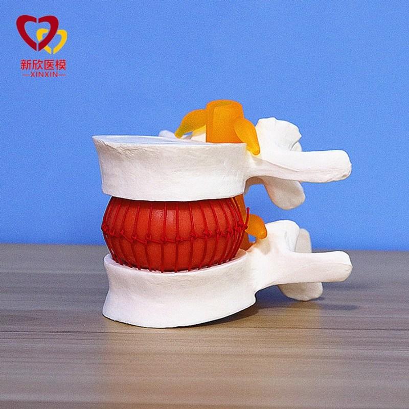 해부 인체 사람 모형 모델 요추 추간판 1 1 인간의 뼈 척추 척추 학 의료 교육 골격, 추간판 모델 (POP 5695651033)