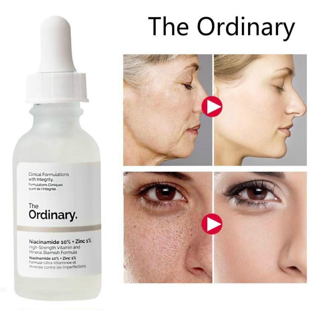 The Ordinary Niacinamide 10% + Zinc 1% 60ml 디오디너리 나이아신아마이드 아연 여드름 얼굴 미백관리, 1개, 2oz