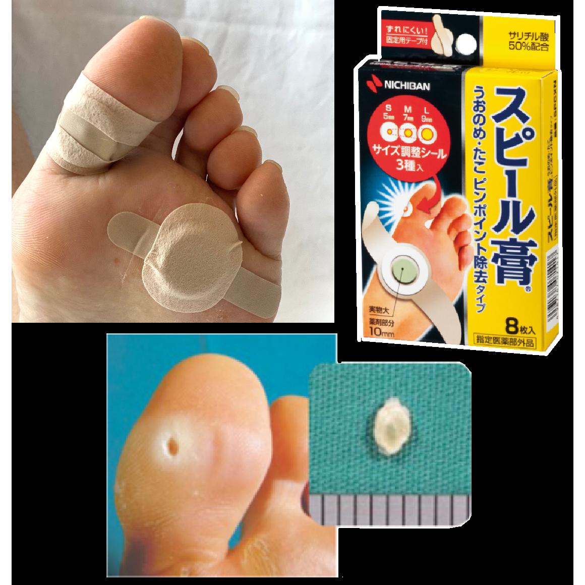 [당일배송] 단품/2개세트 발바닥 발가락 티눈 치료 약 물집 사마귀 제거 보호 밴드 8입, 1개 (POP 5695189935)