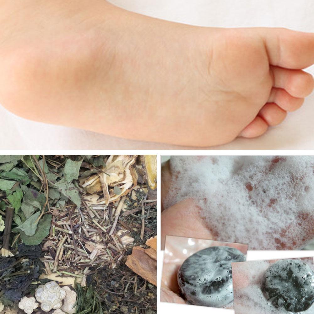 바이오밍 문제성발+발냄새+발땀+각질 - 죽목초액 붉나무 천연비누 풋케어, 110g, 1개