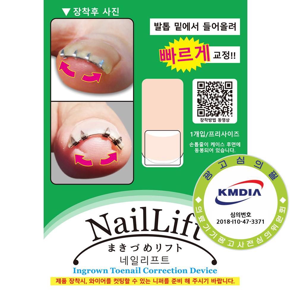 내성발톱 교정기기 네일리프트 NailLift, 1개